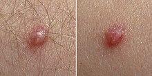 papillomavirus nom anglais cancer san cu metastaze