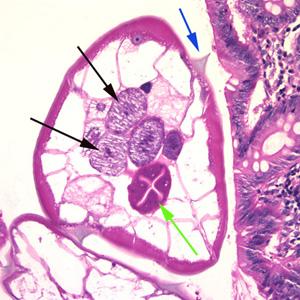 enterobius vermicularis gram stain virus papiloma humano tipo 52