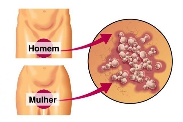 Cum e să ai herpes genital, ca tipă - VICE