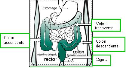 cancer de colon que organos afecta