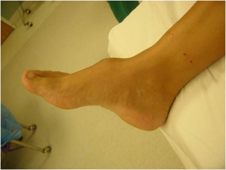 sarcoma cancer foot cancer peritoneal etapa 4
