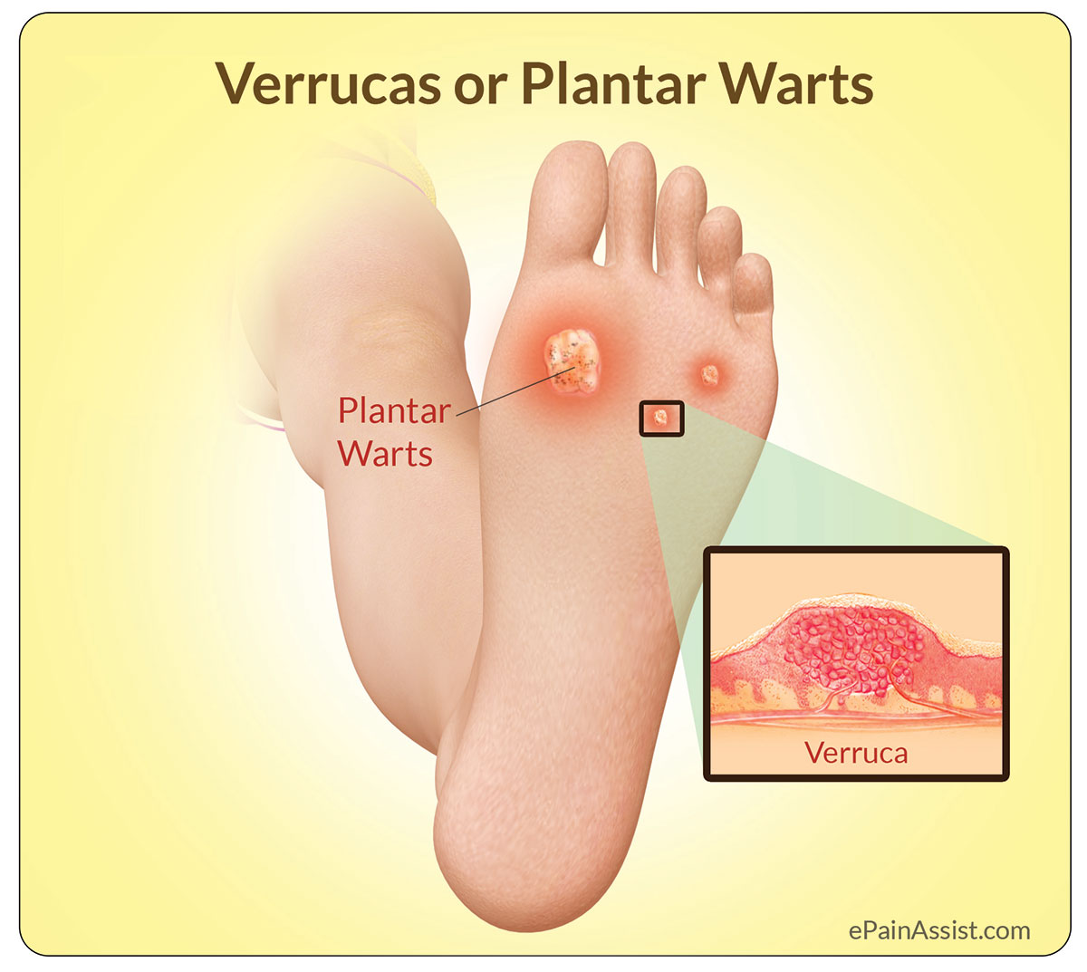 warts on foot causes