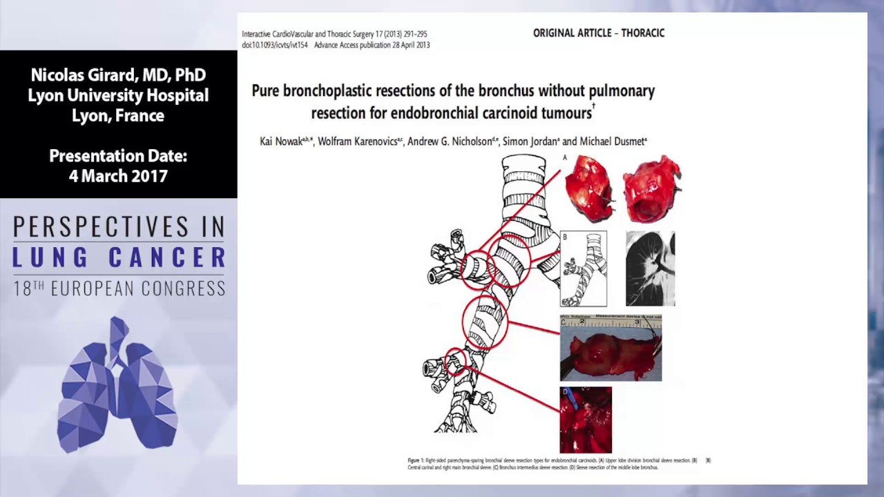 METASTATIC CARCINOID TUMOR- ATYPICAL PRESENTATION | The Medical-Surgical Journal