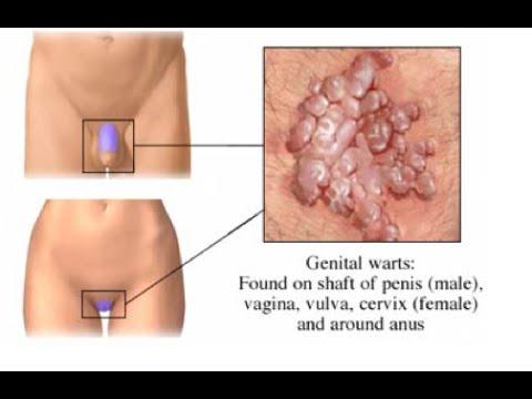 Leucoplazie de penis Cauze posibile & Diagnostice diferențiale | Symptoma