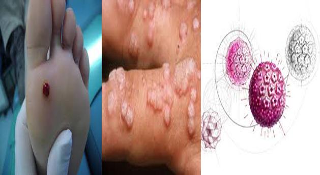 virus de papiloma humano y condon