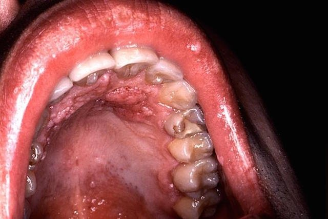 hpv vaccine quadrivalent vs 9 valent hpv tongue warts