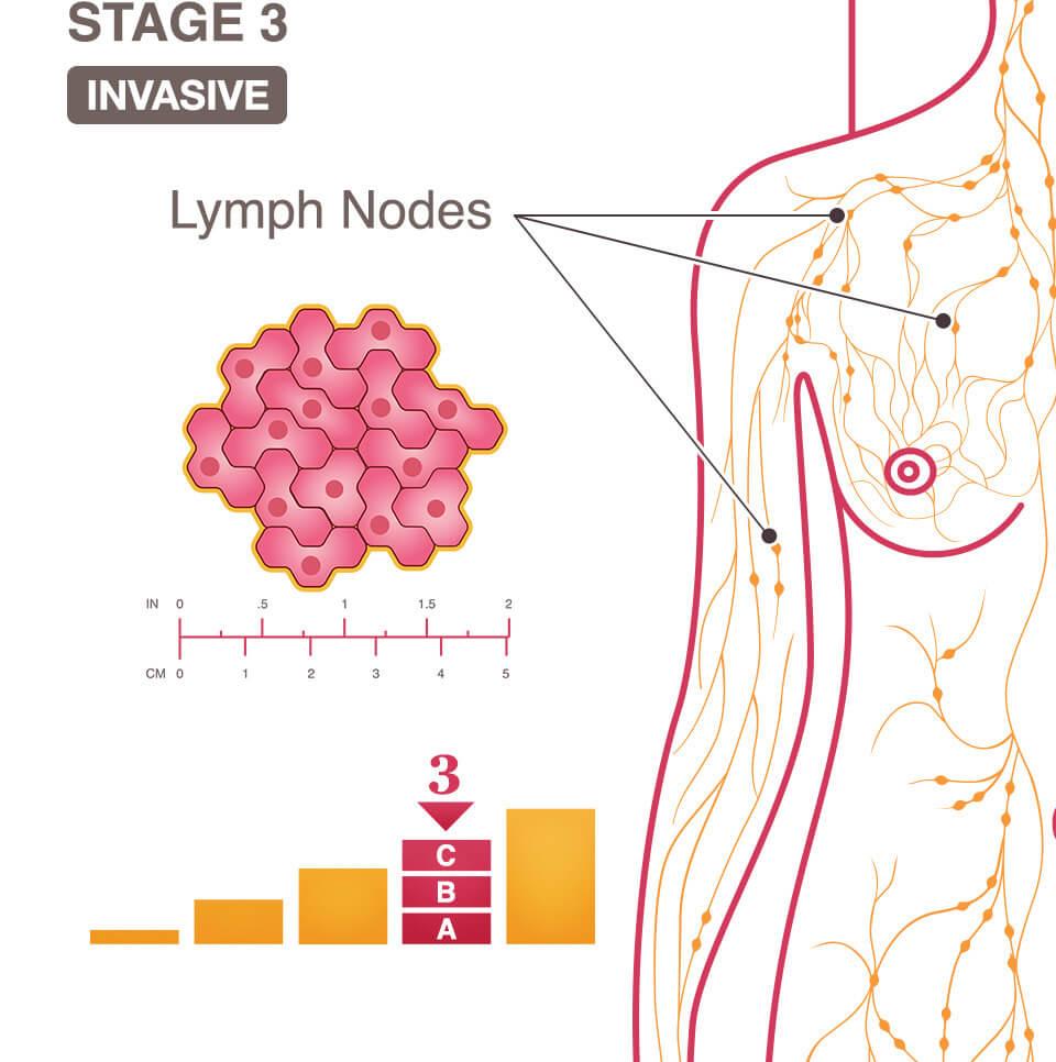 cancerul de col uterin dupa menopauza vindecare cancer tiroidian