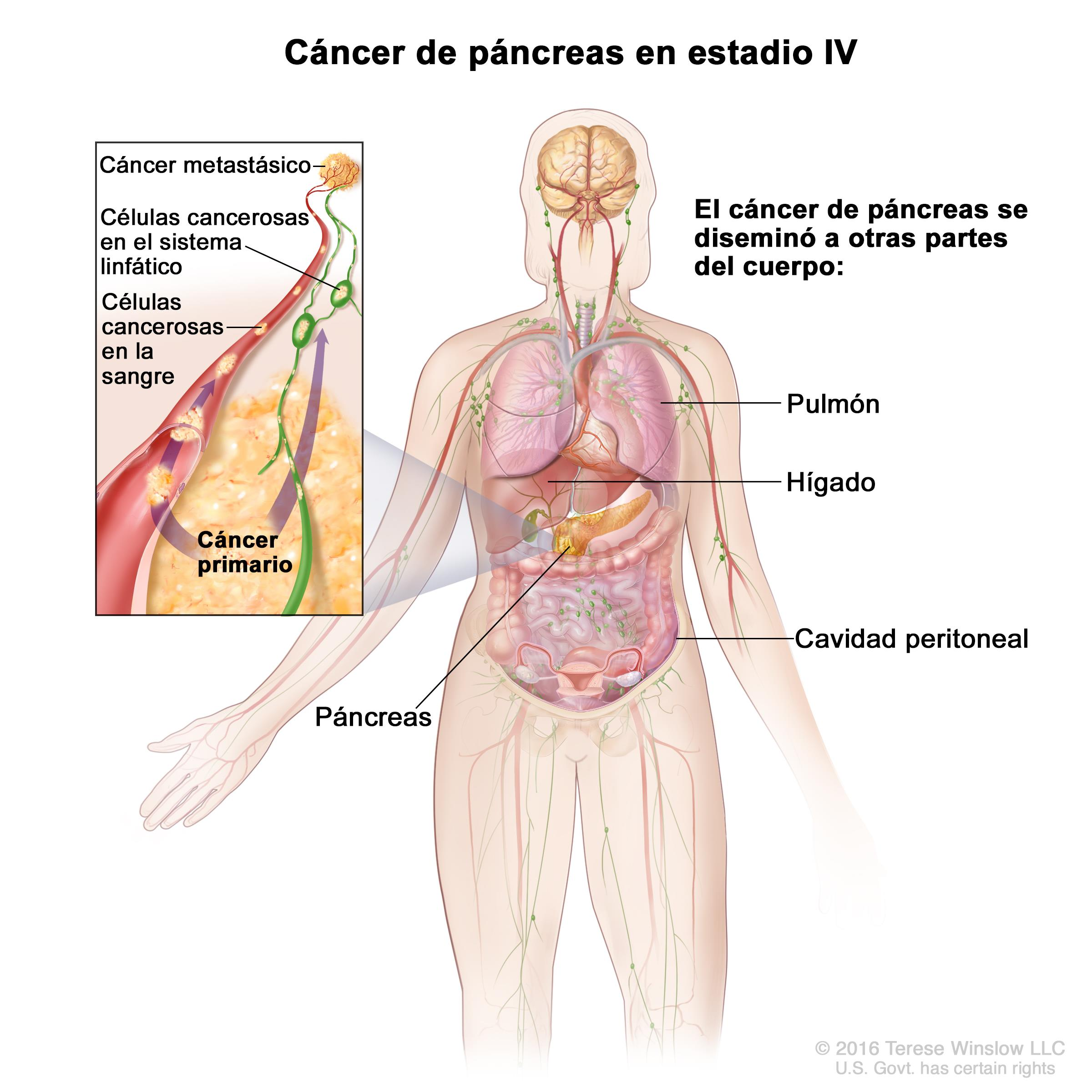 cancer de pancreas metastase