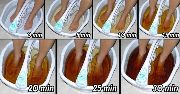 electroliza pentru detoxifiere program detoxifiere 7 zile