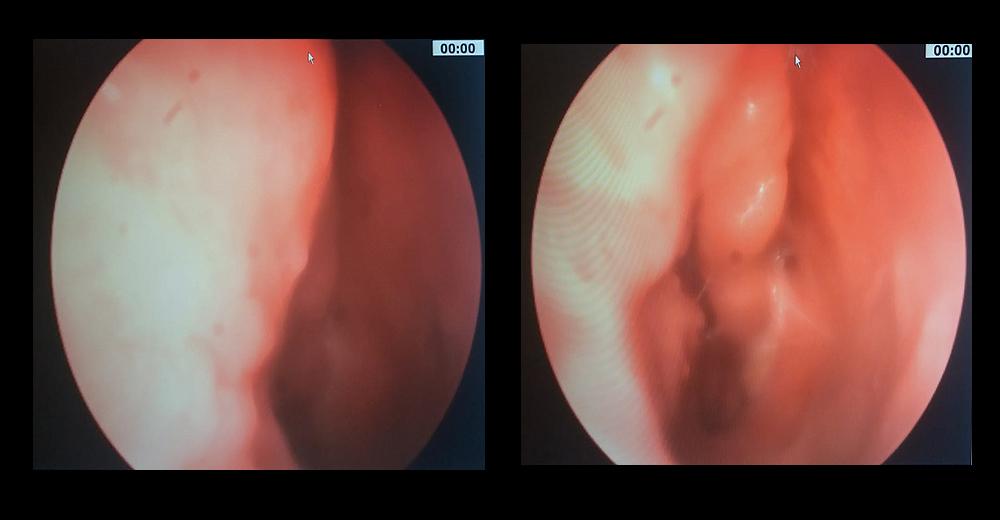 papilloma virus intervento chirurgico