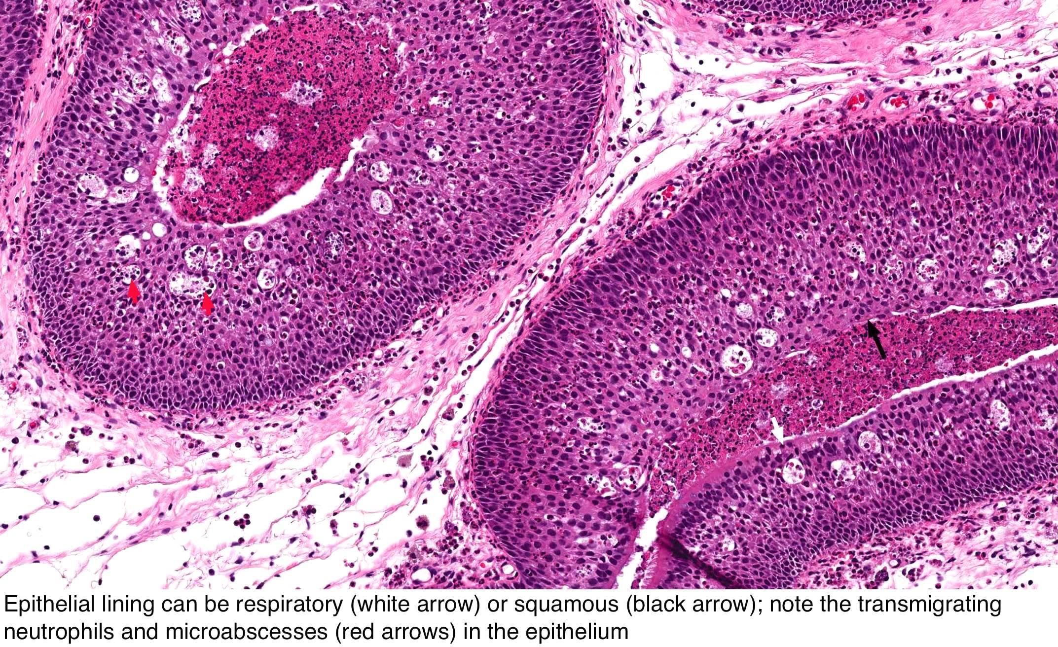 tonsil papilloma pathology