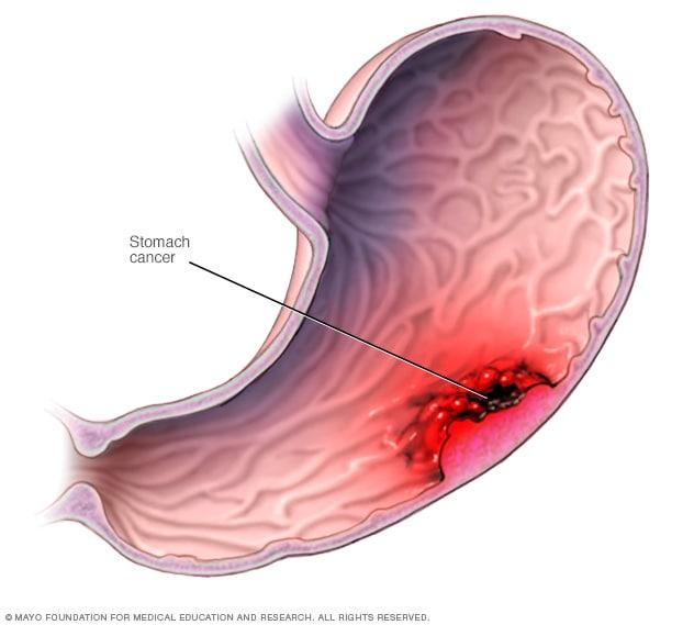 gastric cancer adenocarcinoma gliste u stolici odrasli