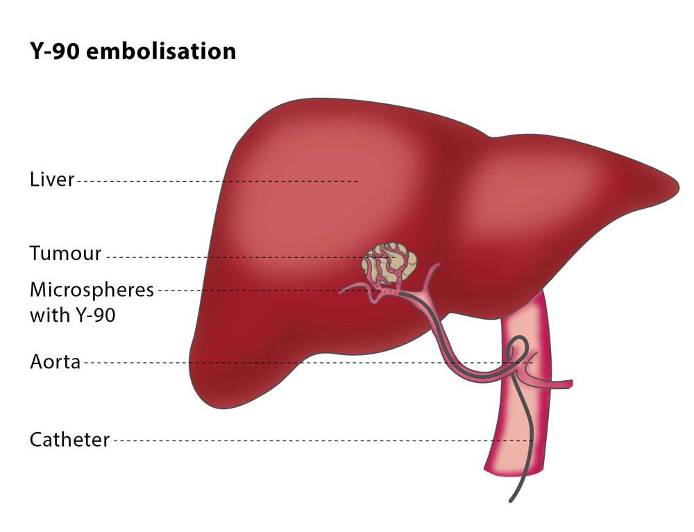 cancer de ficat tratament