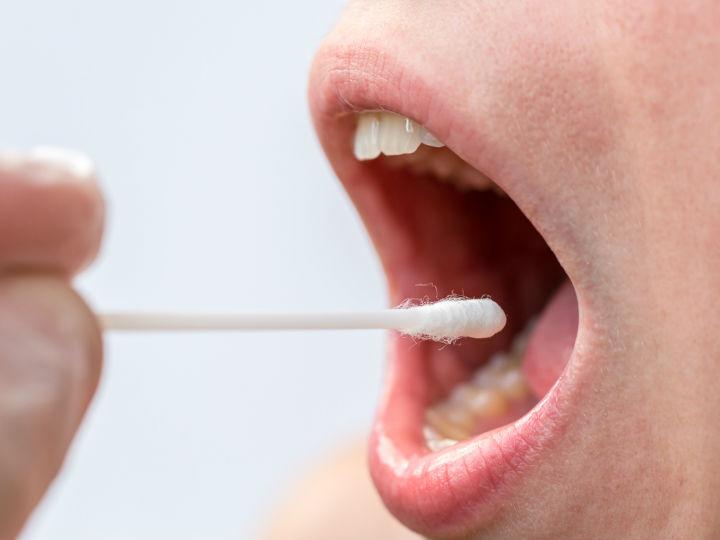 inicio de papiloma en la boca