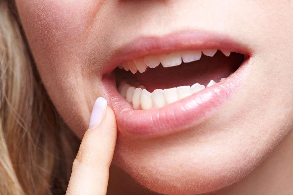 virus del papiloma boca