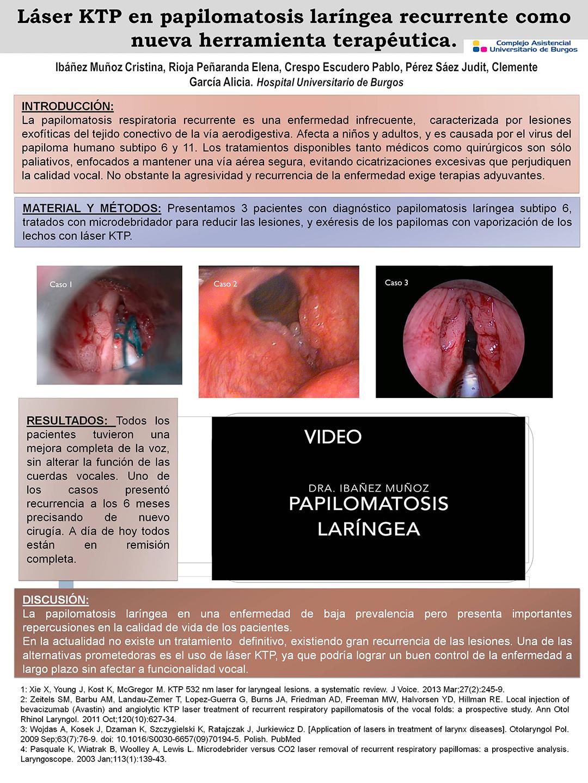 tratamiento para papilomatosis laringea