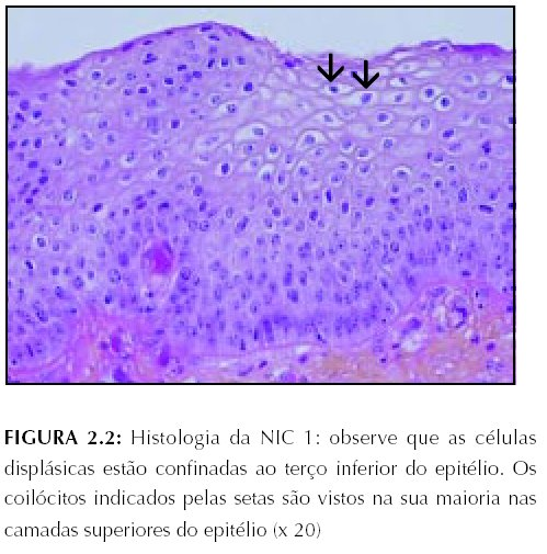 papilloma virus displasia grave