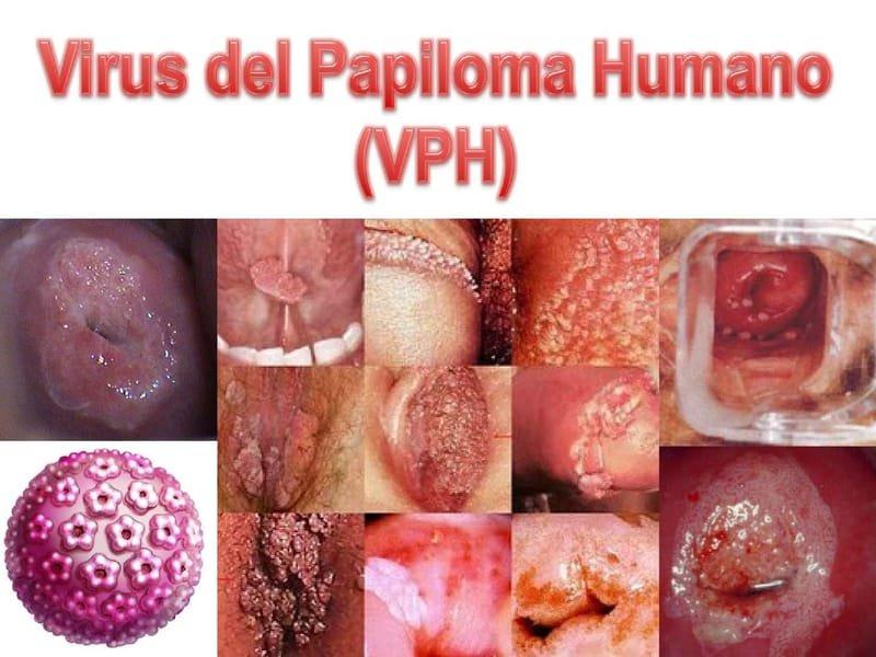 virus del papiloma humano o verrugas genitales papilomii genitali