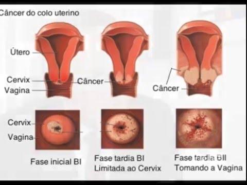 cancer de colon on Tumblr