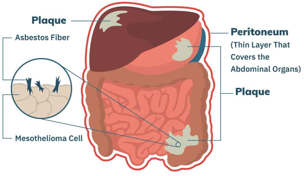 cancer col uterin stadii