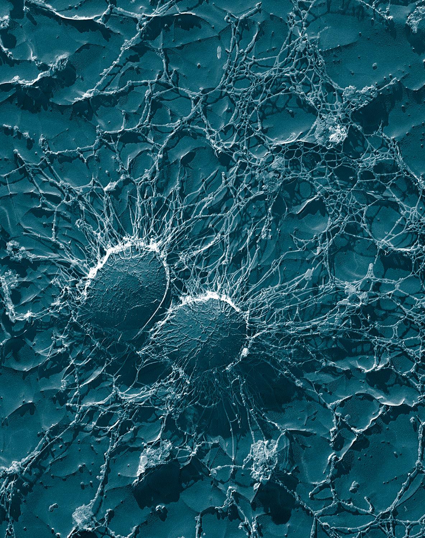 bacterii rezistente la fierbere