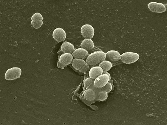 Hidrogenbacteriile, bacteriile metanogene, sulfuroase