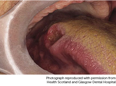 base of tongue cancer and hpv cancer bacterian copaci