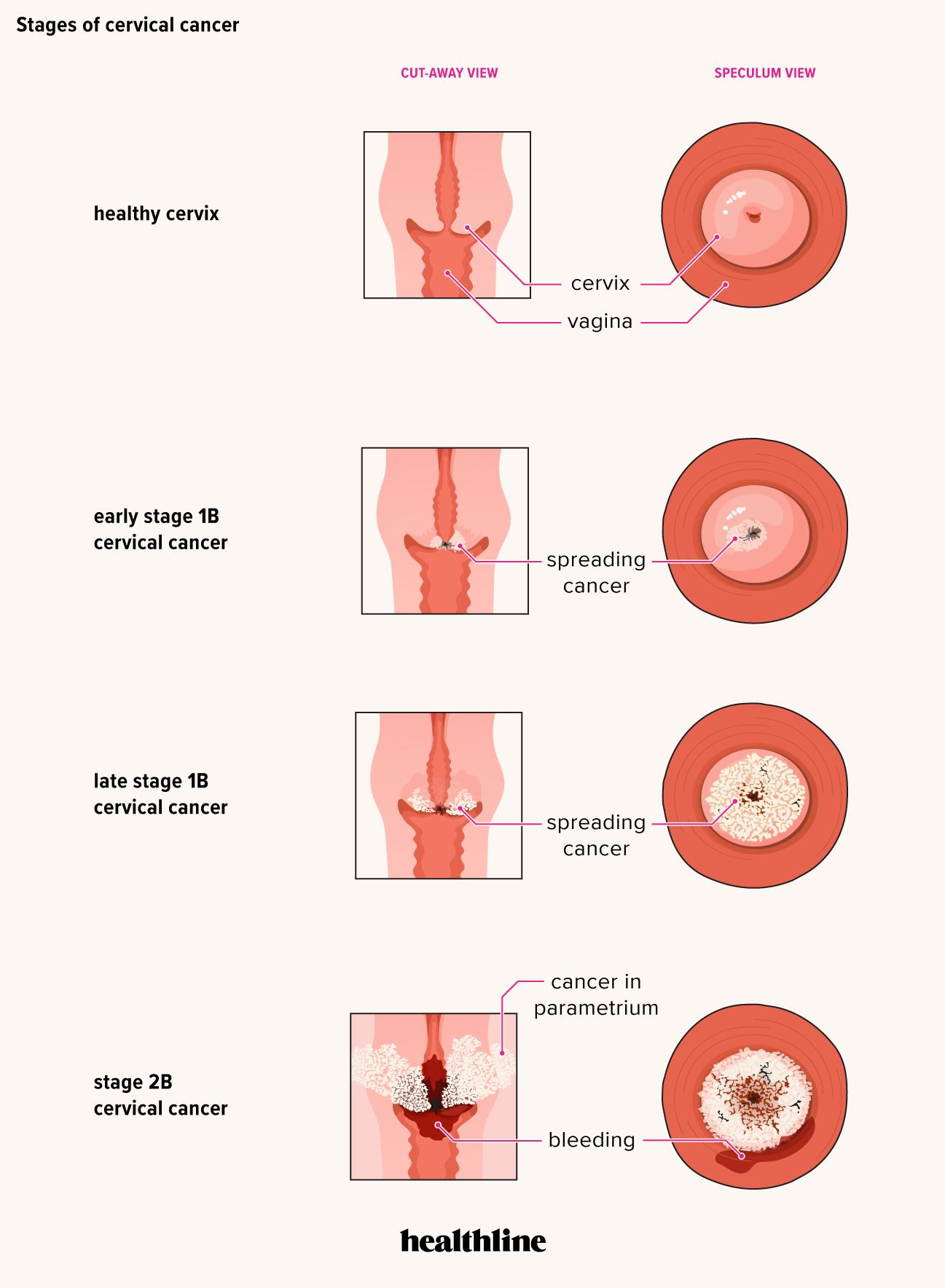 precancerous hpv symptoms vph en ano tratamiento