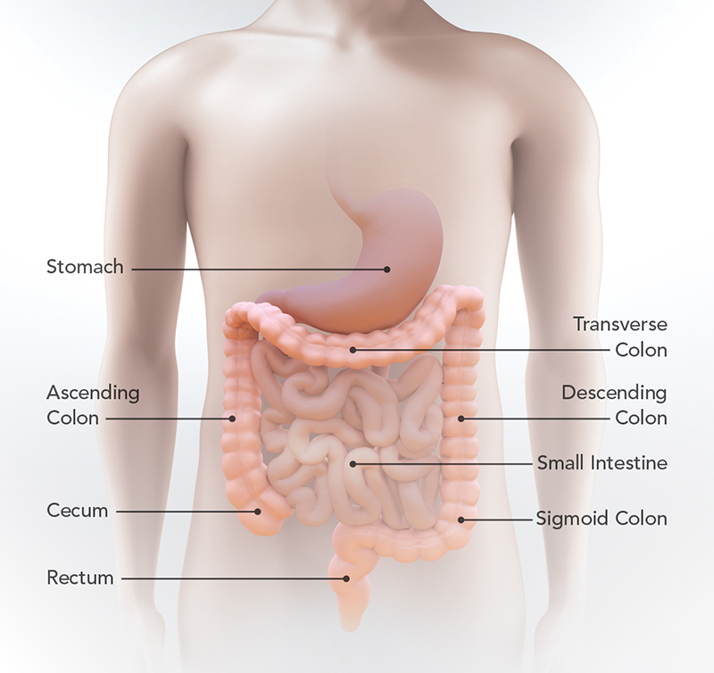 cancerul de colon se transmite