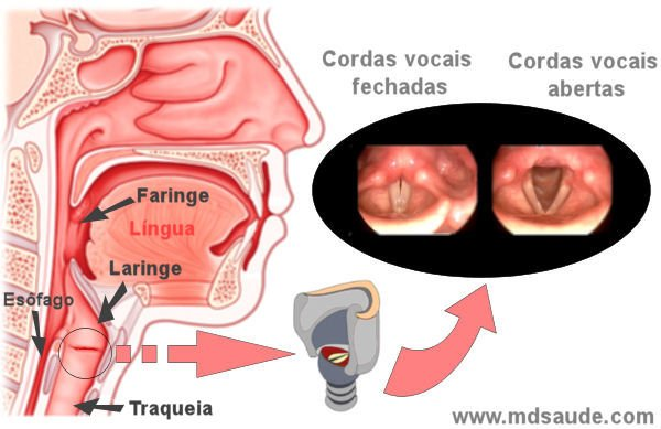 cancer na laringe sintomas