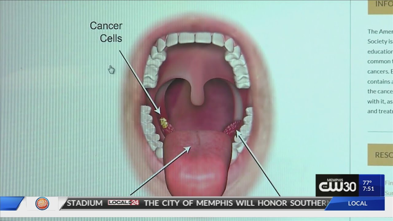 pictures of hpv throat cancer