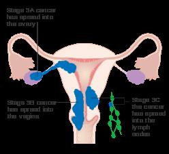 endometrial cancer early symptoms human papillomavirus vaccine nonavalent