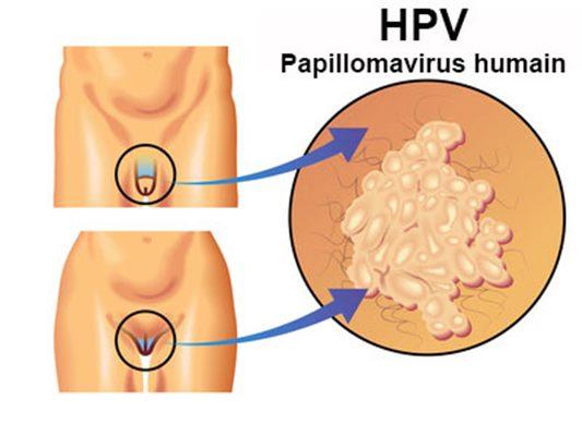 bouton bouche papillomavirus
