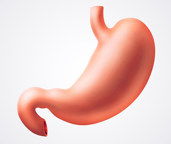 cancer gastric cauze