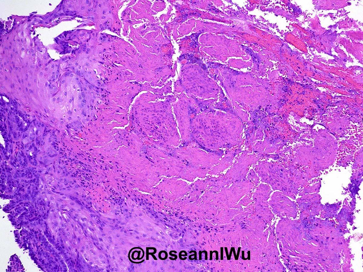 breast papilloma squamous metaplasia