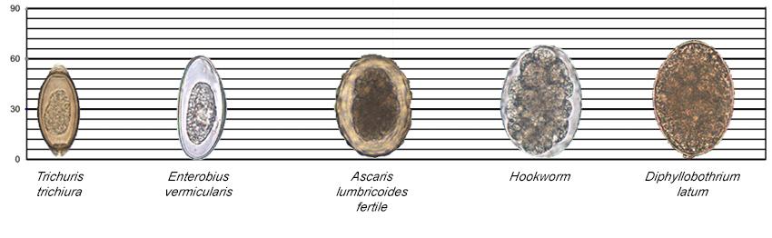 enterobius vermicularis vs ascaris lumbricoides
