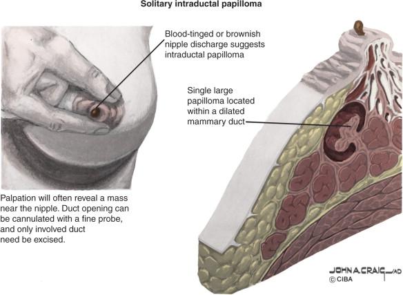papillomatosis discharge