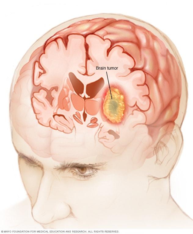 causas cancer colorectal hpv virus gebarmutterhals