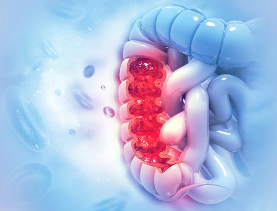 Cancer colorectal | Merck Romania