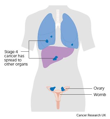 ovarian cancer metastatic prognosis papillomas cause
