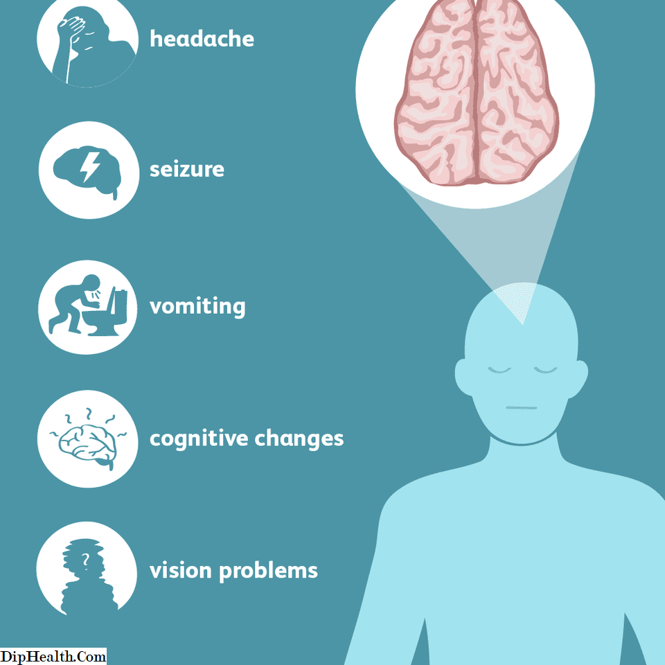 cancer creier simptome