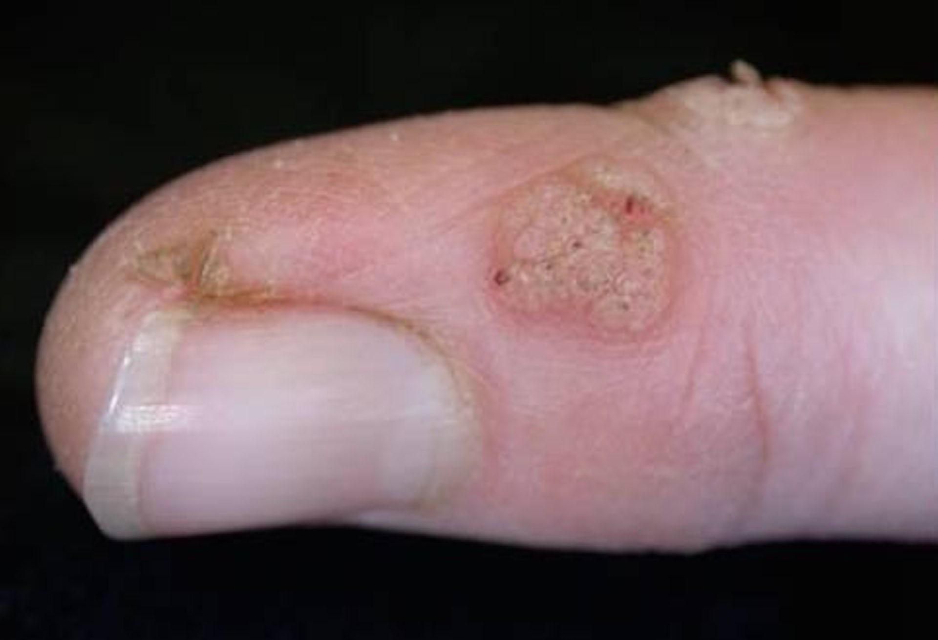 cancer esofagian etiologie parazitii in londra