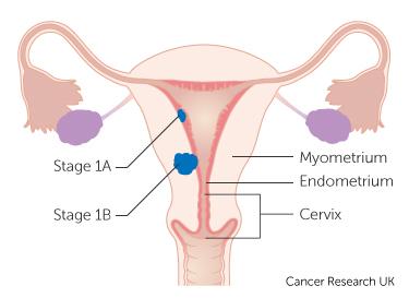 human papillomavirus and male infertility