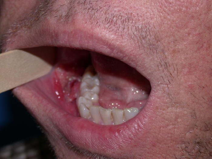 cancer bucal en chile que signo es junio cancer