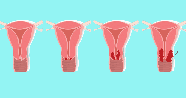 cancer cervical sintomas mujer cancer de san inoperabil