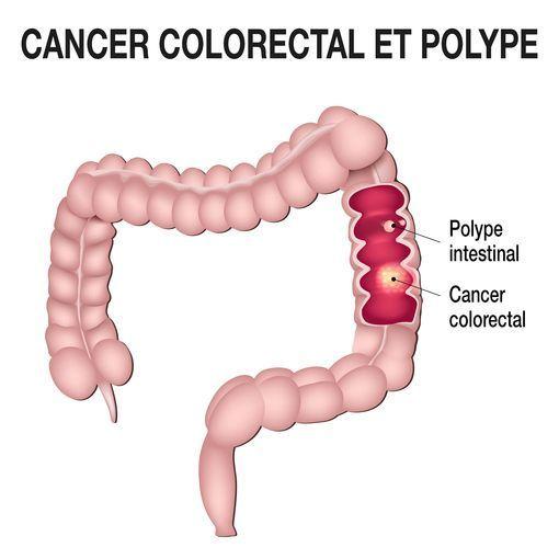 cancer colorectal douleur dos toxin 5