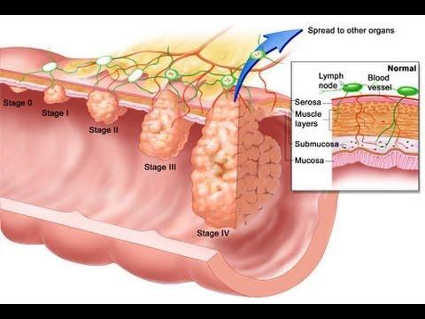 cancer de colon fisiopatologia virus papiloma humano bucal sintomas