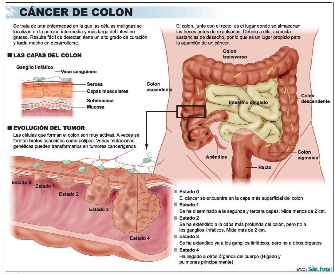 cancer colon copii simptome