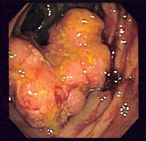 cancer de colon sigmoid simptome