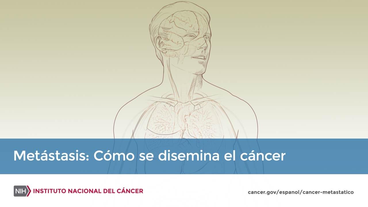 cancer de faringe pronostico linfezione da papilloma virus umano (hpv)